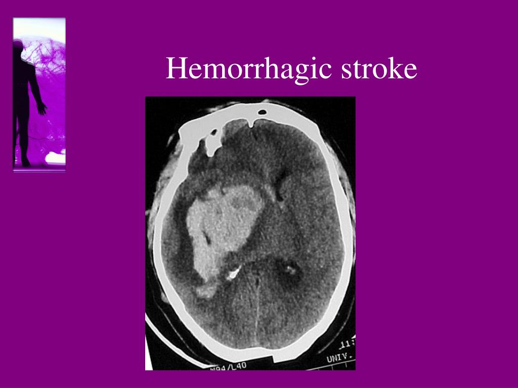 PPT - Antiplatelet and anticoagulant therapy in stroke ...