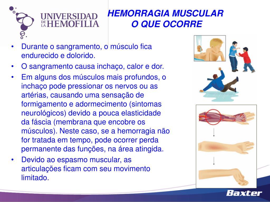HEMORRAGIA MUSCULAR