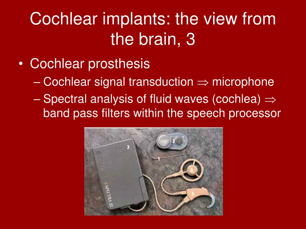 Cochlear implants: the view from the brain, 3