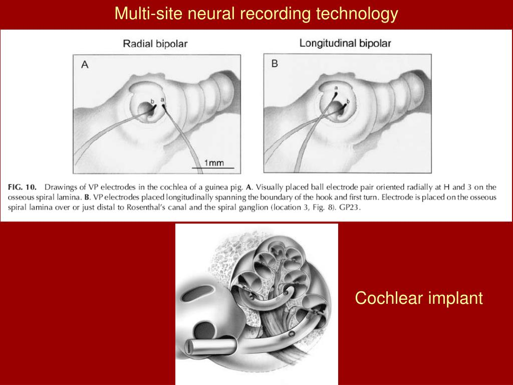 Multi-site neural recording technology