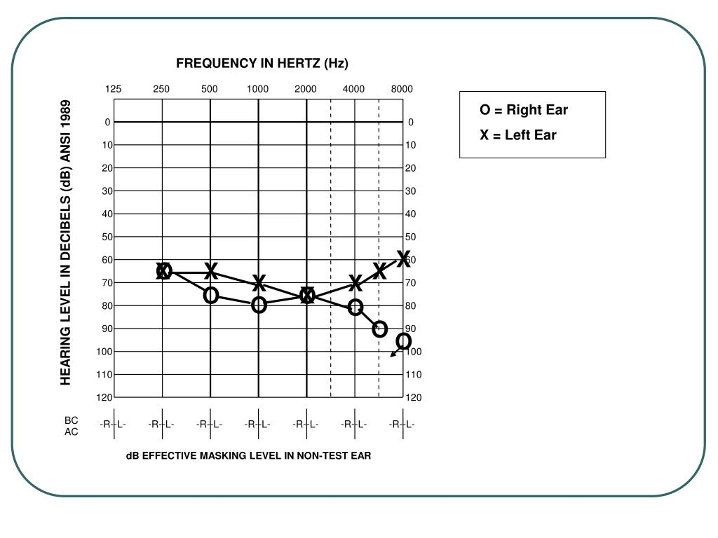 FREQUENCY IN HERTZ (Hz)