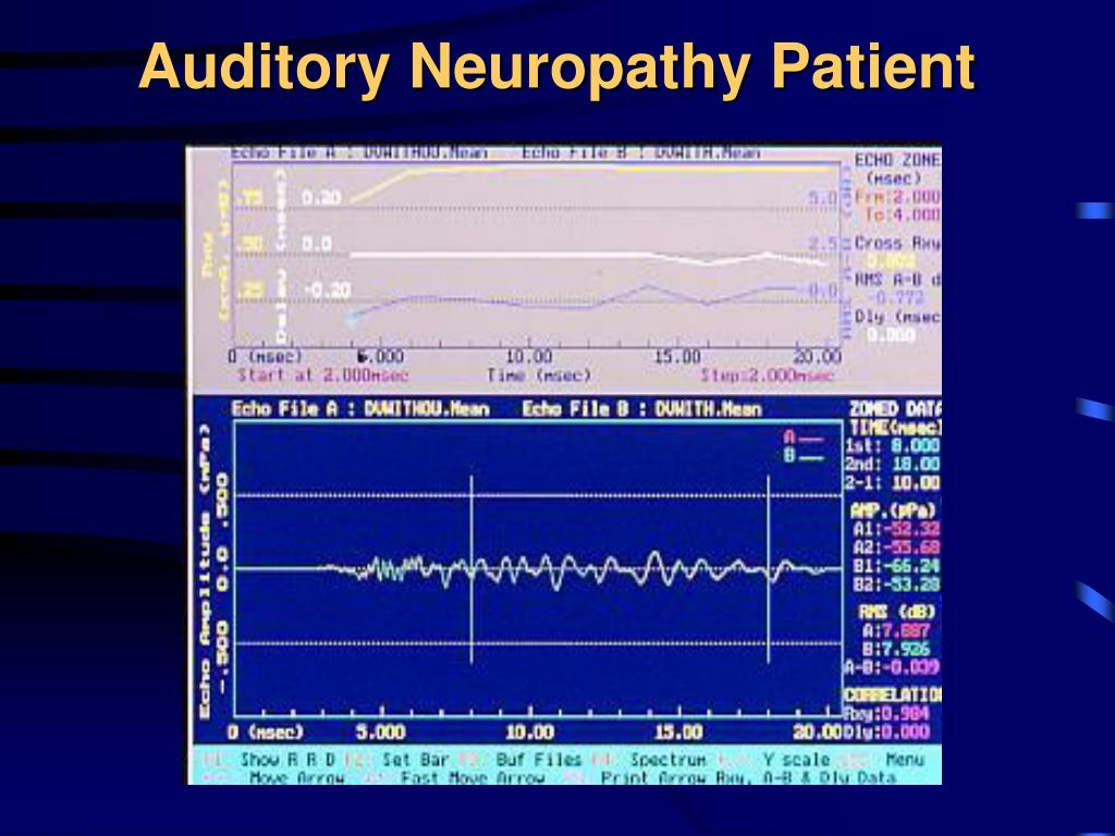 Auditory Neuropathy Patient