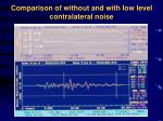 comparison of without and with low level contralateral noise