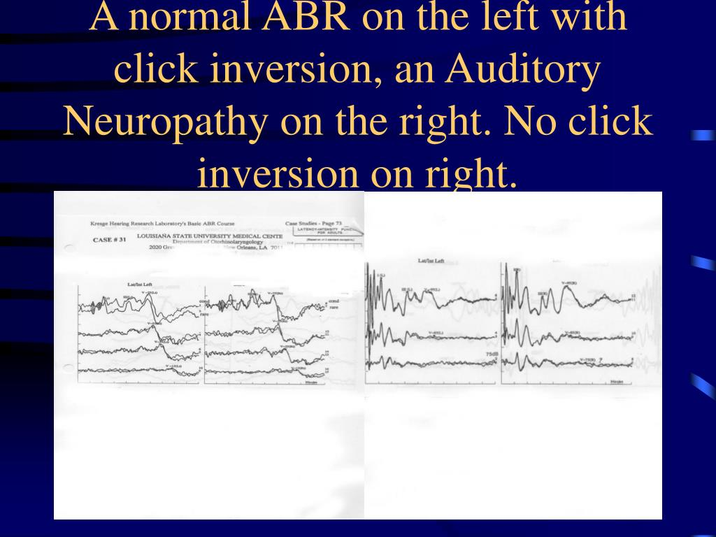 A normal ABR on the left with click inversion, an Auditory Neuropathy on the right. No click inversion on right.
