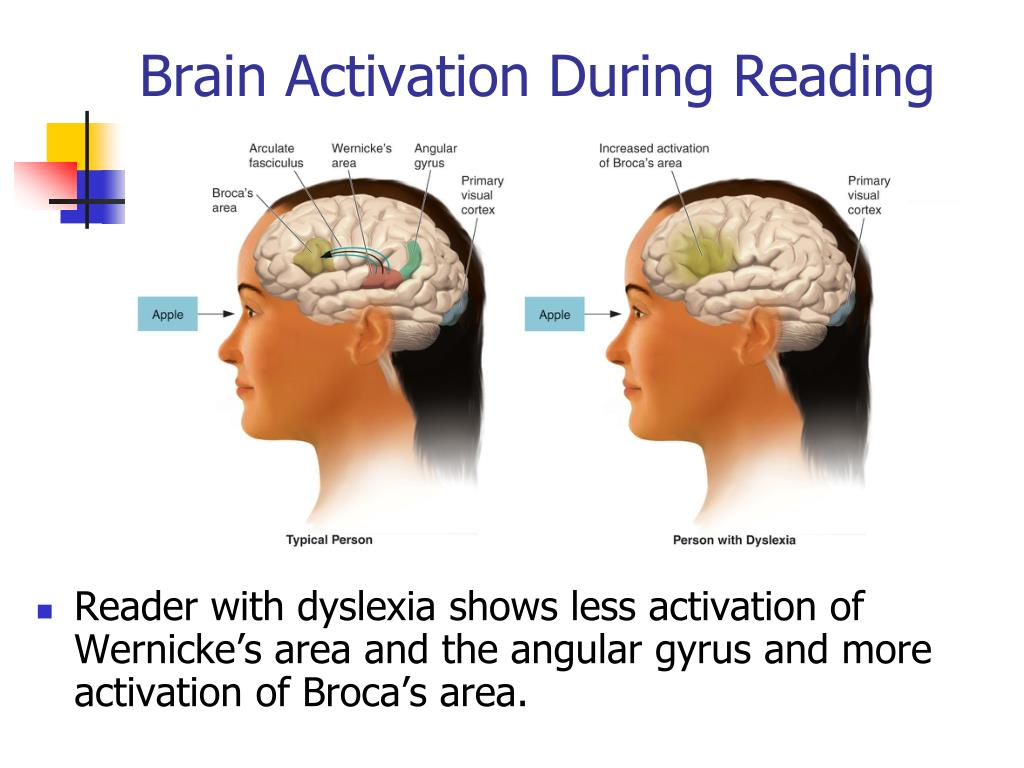 Brain Activation During Reading