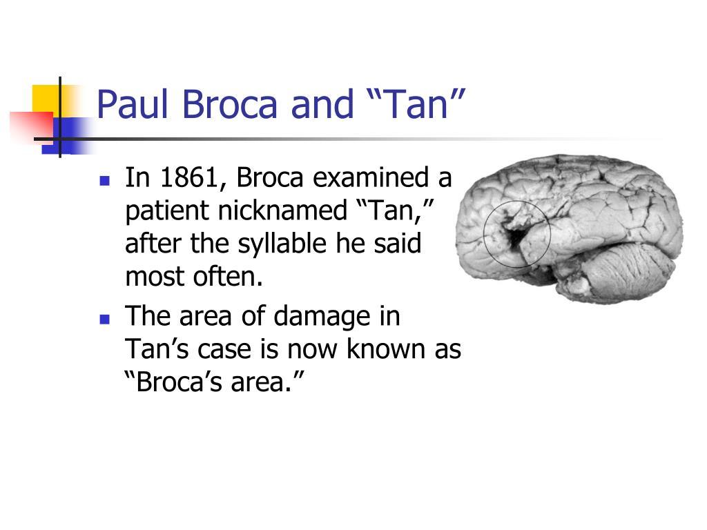 """Paul Broca and """"Tan"""""""