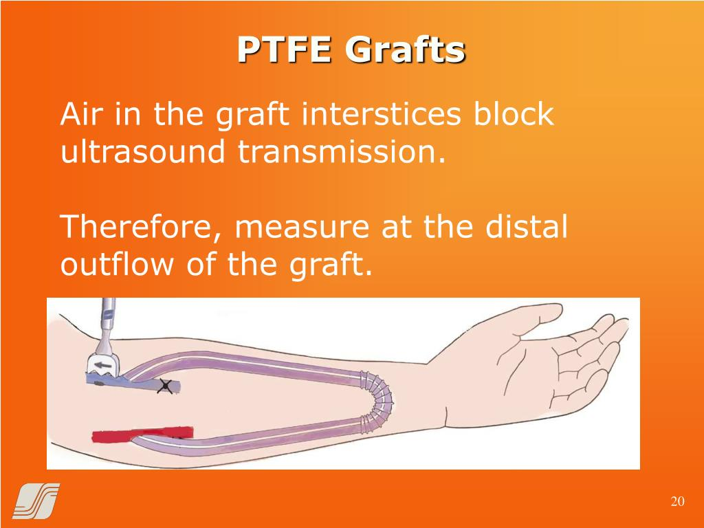 PTFE Grafts