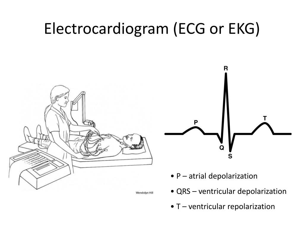 Electrocardiogram (ECG or EKG)