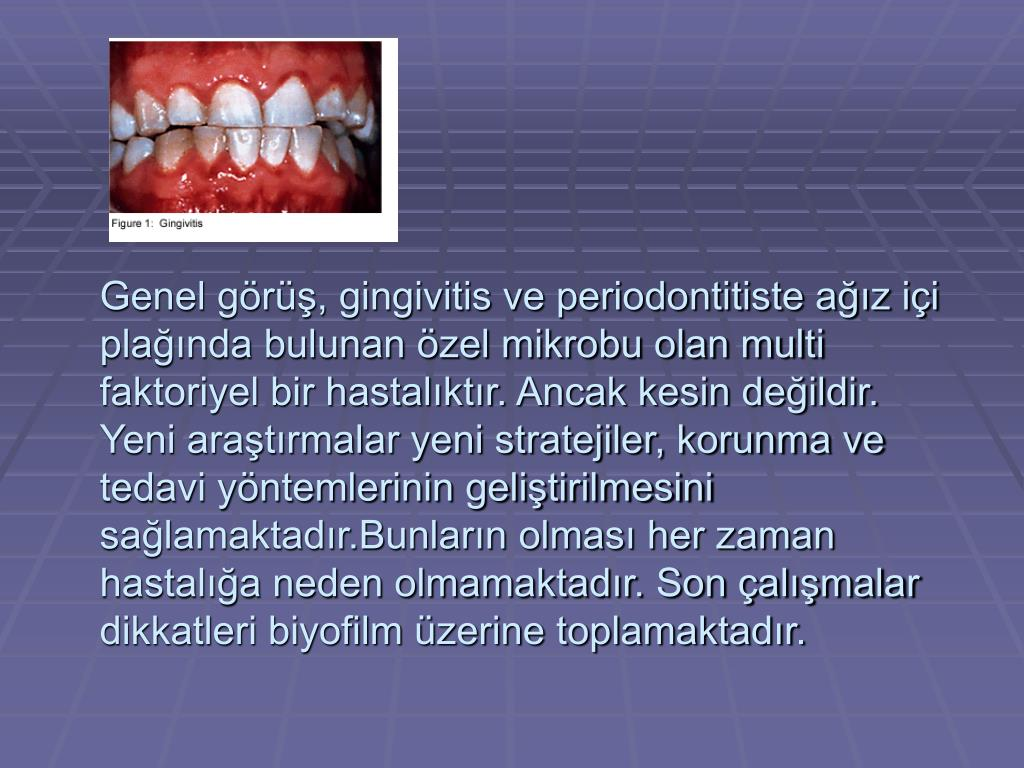 Genel görüş, gingivitis ve periodontitiste ağız içi plağında bulunan özel mikrobu olan multi faktoriyel bir hastalıktır. Ancak kesin değildir. Yeni araştırmalar yeni stratejiler, korunma ve  tedavi yöntemlerinin geliştirilmesini sağlamaktadır.Bunların olması her zaman hastalığa neden olmamaktadır. Son çalışmalar dikkatleri biyofilm üzerine toplamaktadır.