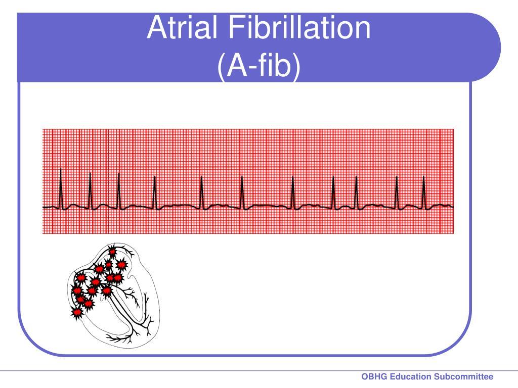Atrial Fibrillation (A-fib)