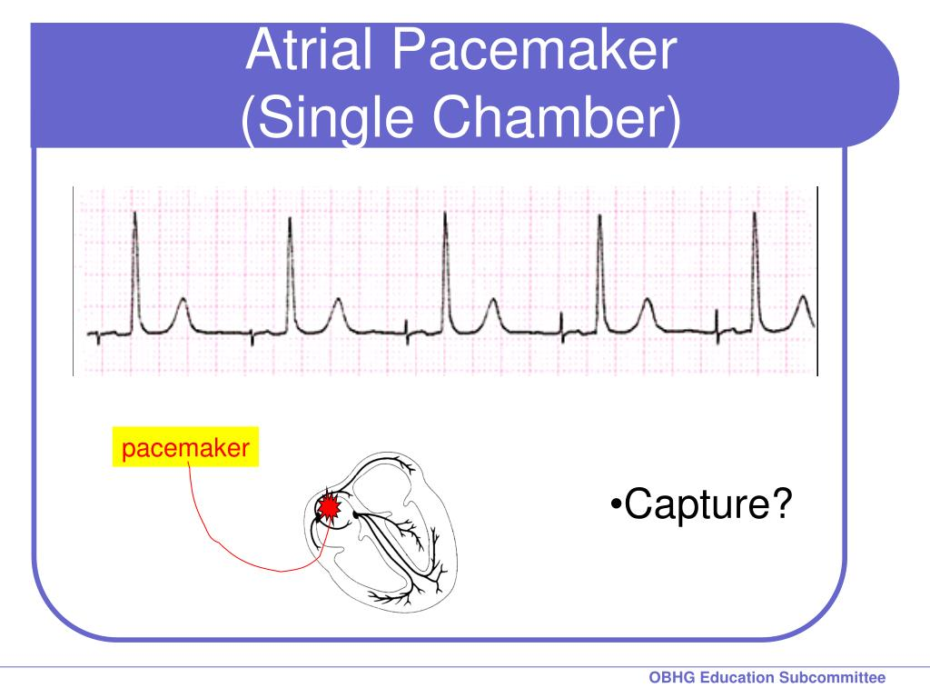 Atrial Pacemaker
