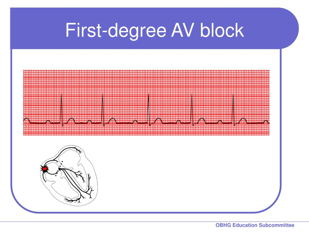 First-degree AV block