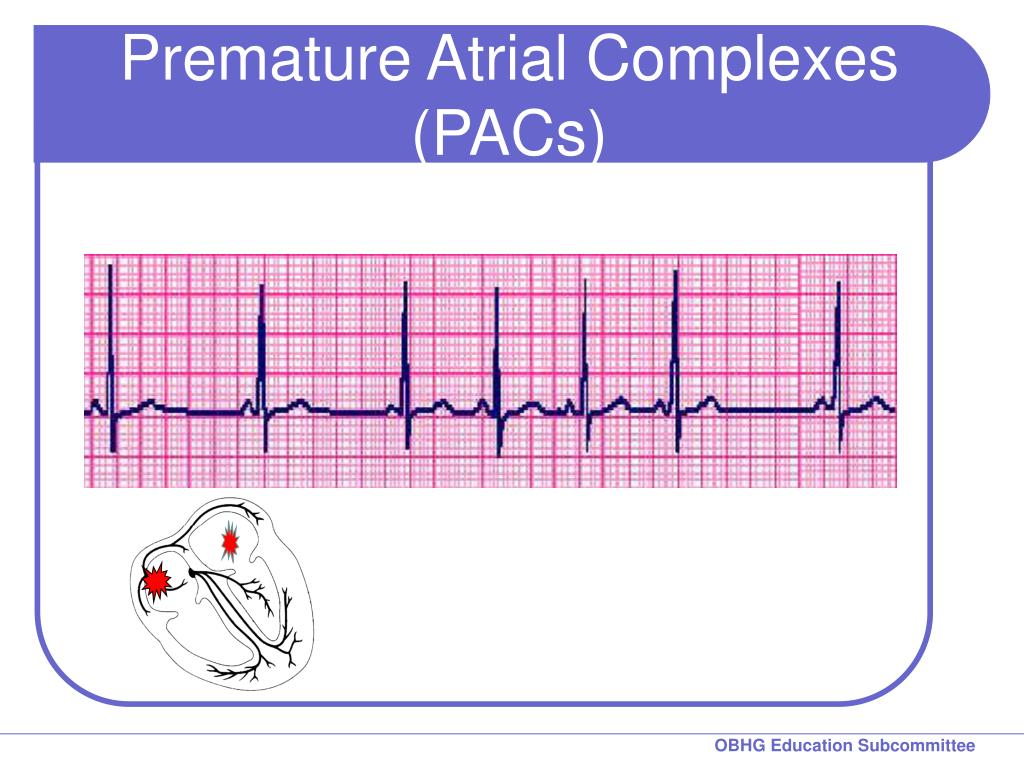 Premature Atrial Complexes (PACs)