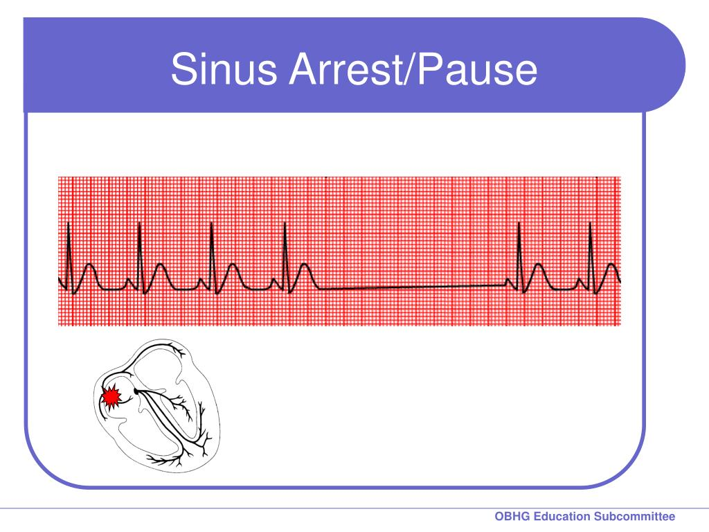Sinus Arrest/Pause