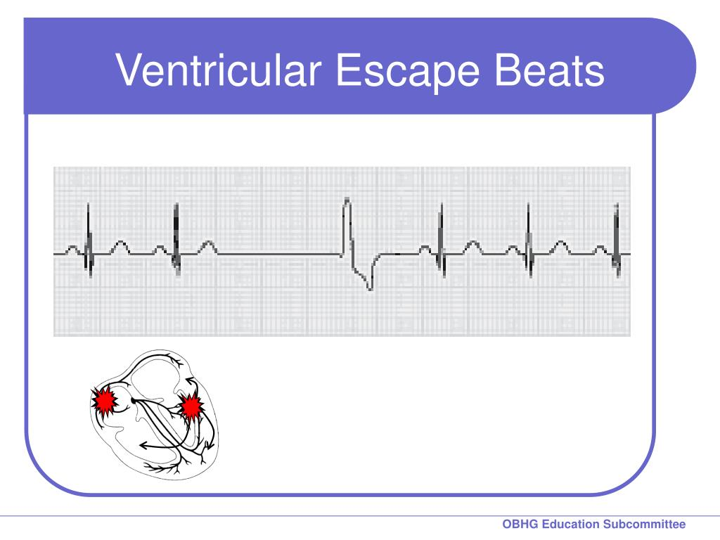 Ventricular Escape Beats