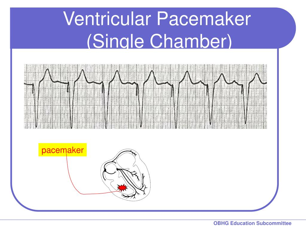 Ventricular Pacemaker