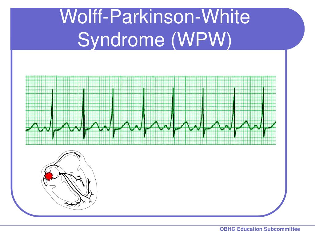 Wolff-Parkinson-White Syndrome (WPW)
