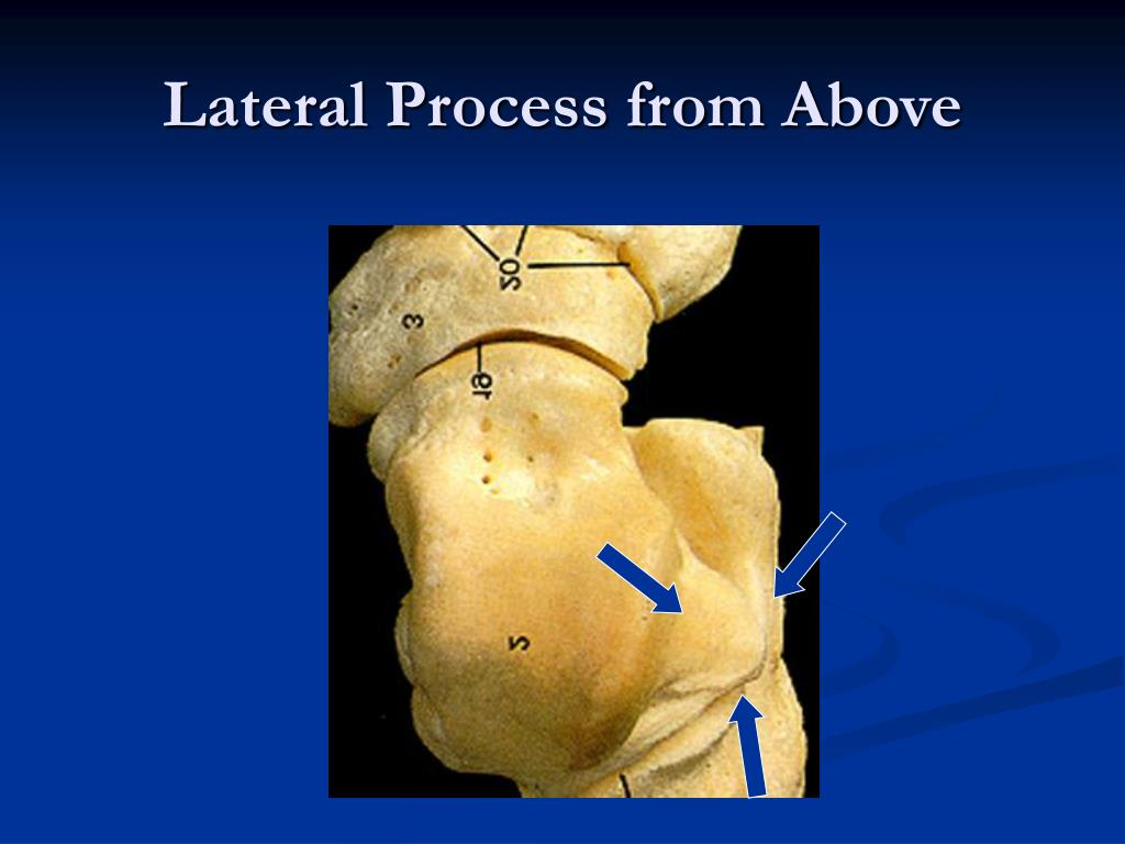 Ppt Fractures Of The Lateral Process Of The Talus A