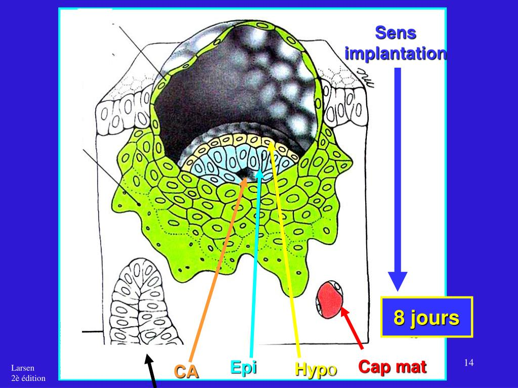 Sens implantation