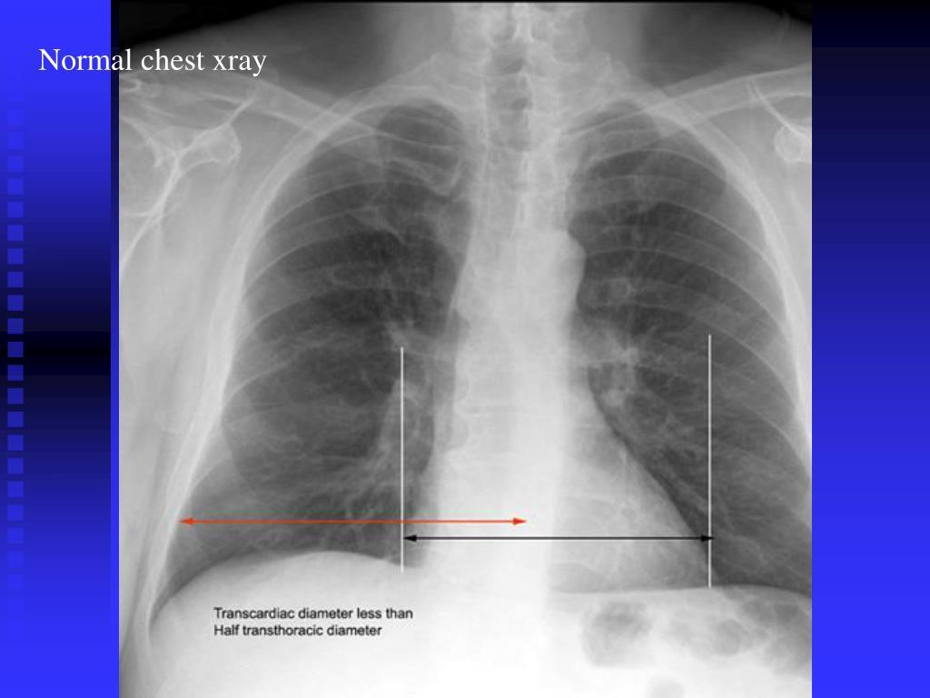Normal Chest X Ray Vs Pneumonia PPT - Pulmonary...