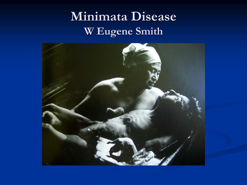 Minimata Disease