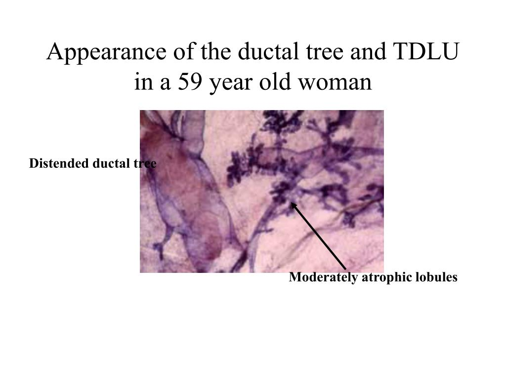 Appearance of the ductal tree and TDLU in a 59 year old woman