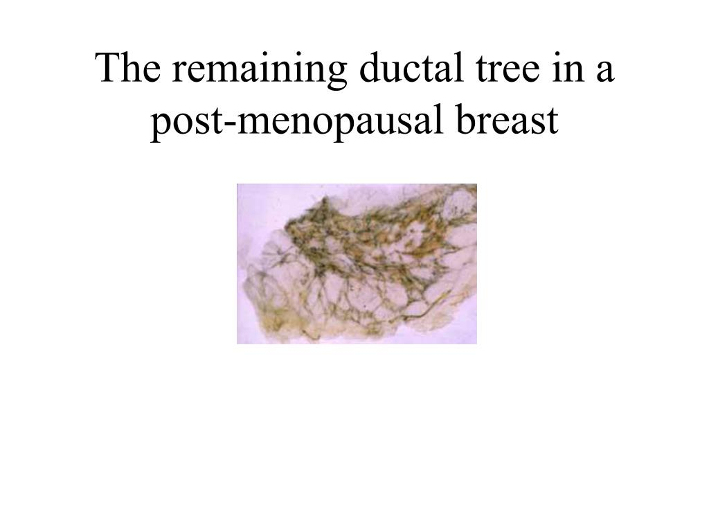 The remaining ductal tree in a post-menopausal breast