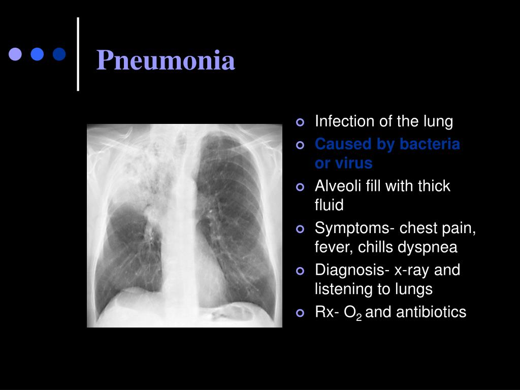 Infection of the lung