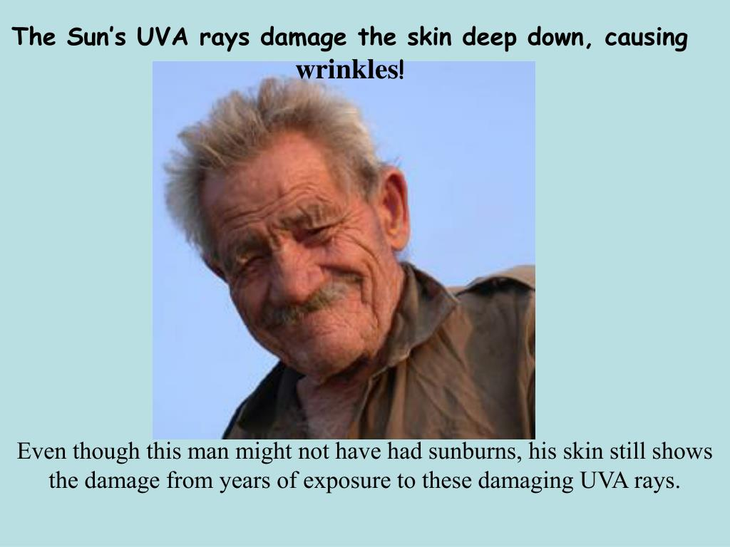 The Sun's UVA rays damage the skin deep down, causing