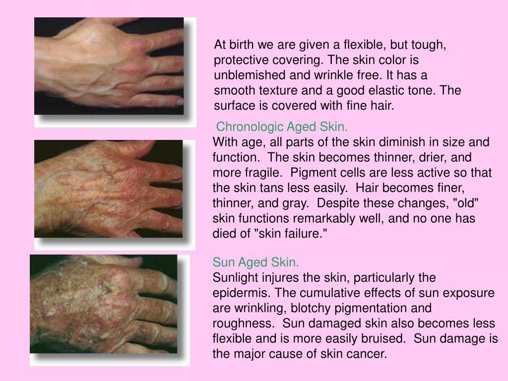 Chronologic Aged Skin.