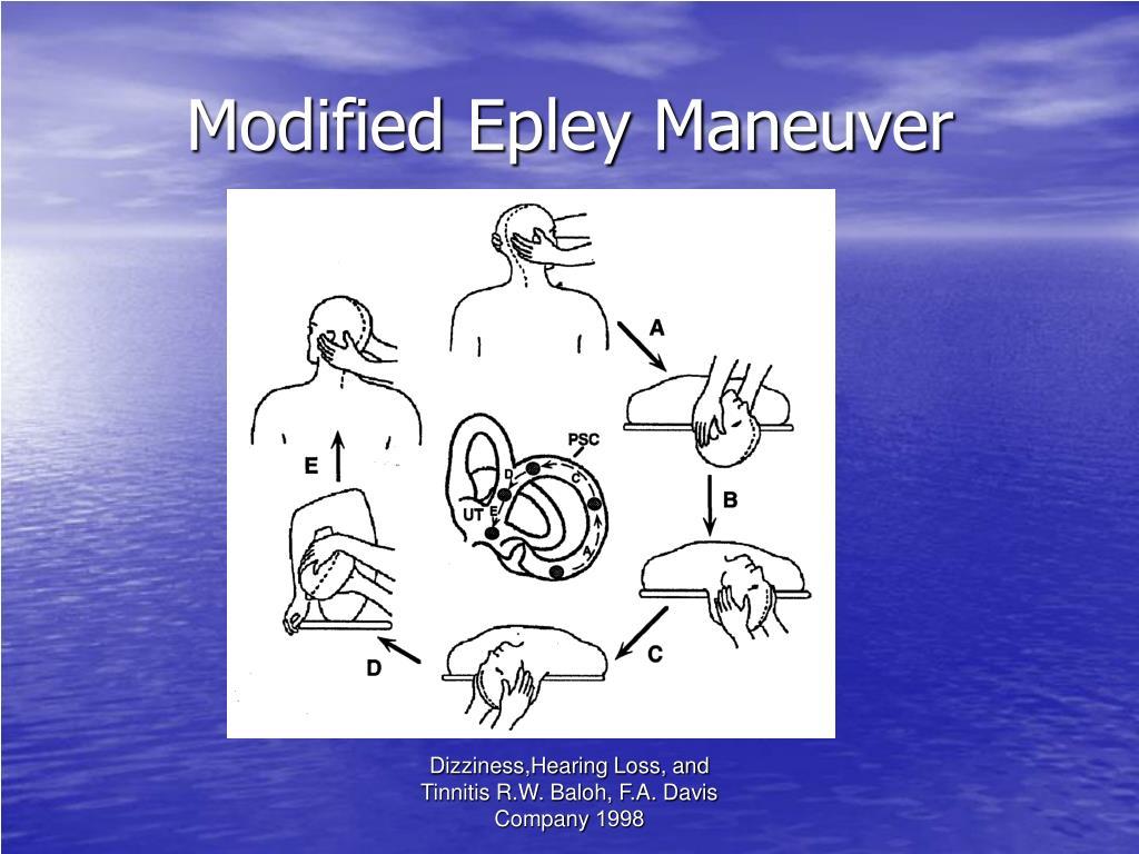 home epley maneuver instructions