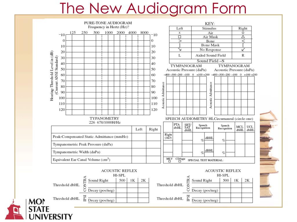 The New Audiogram Form