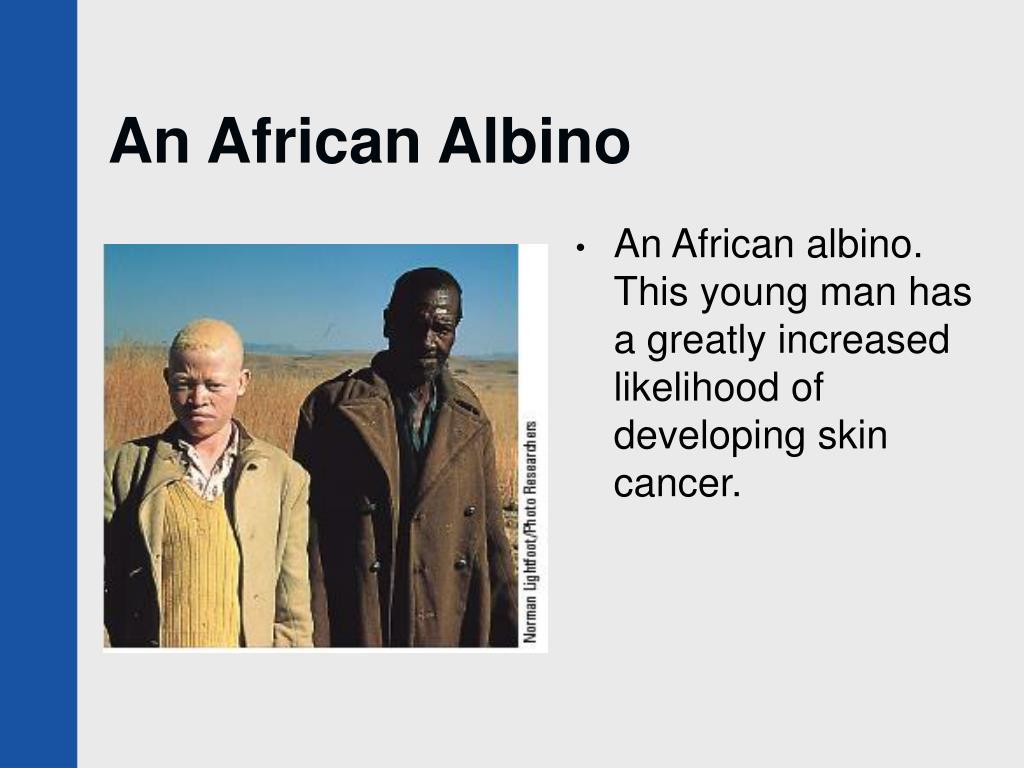 An African Albino