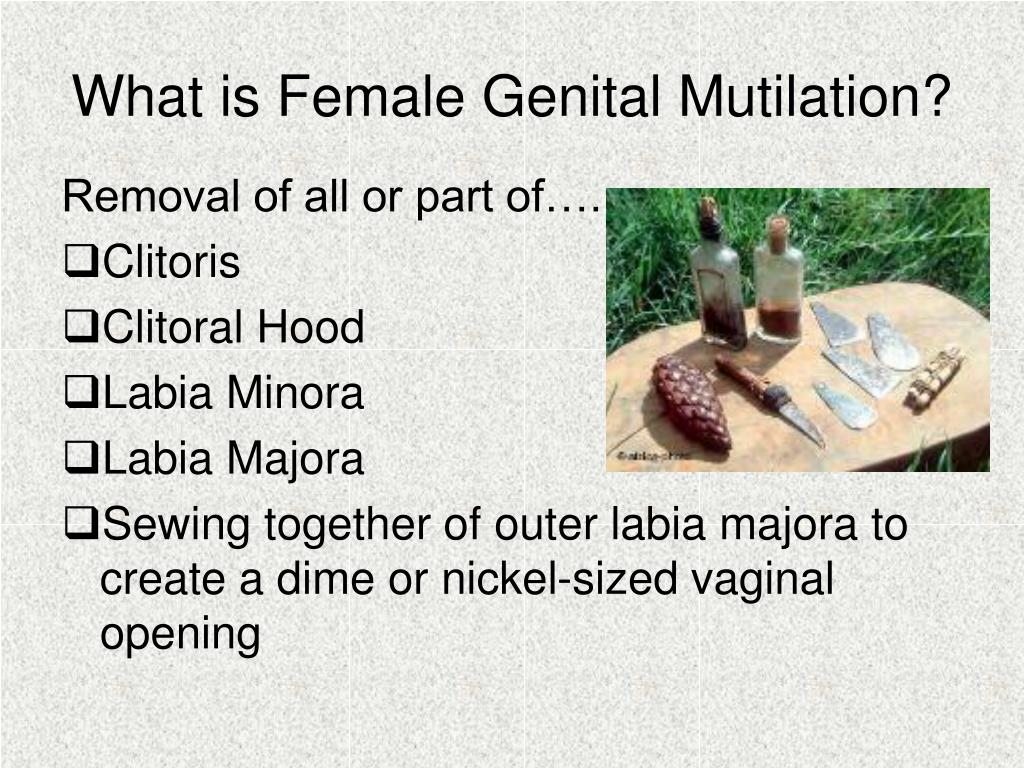 What is Female Genital Mutilation?