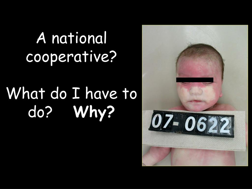 A national cooperative?