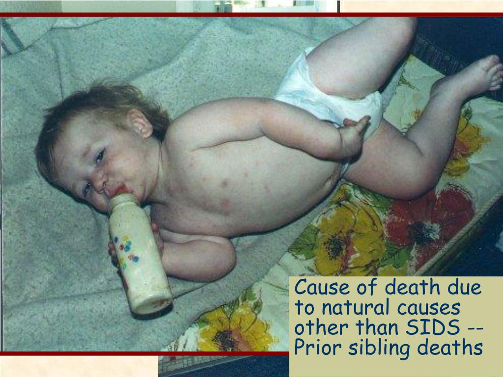 Cause of death due to natural causes other than SIDS --Prior sibling deaths