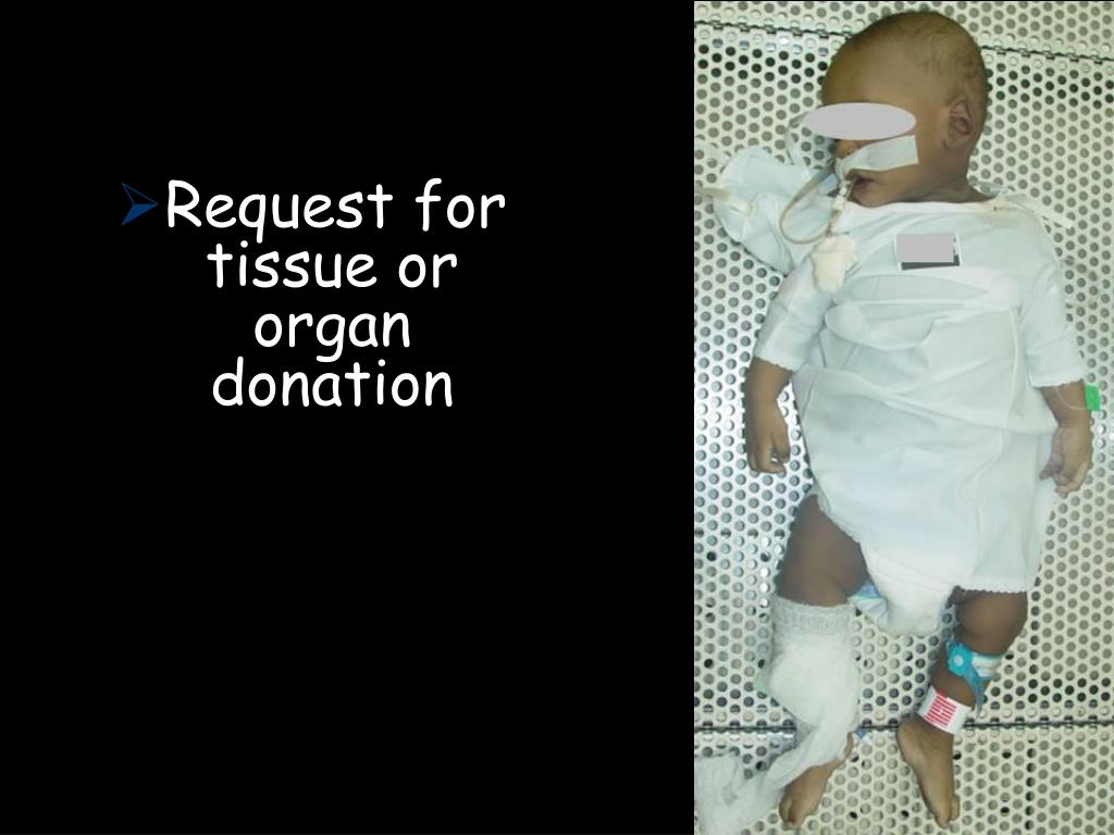 Request for tissue or organ donation
