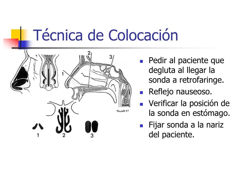 Técnica de Colocación
