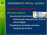 sofrimento fetal agudo4