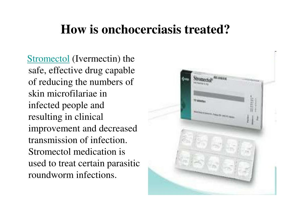 How is onchocerciasis treated?