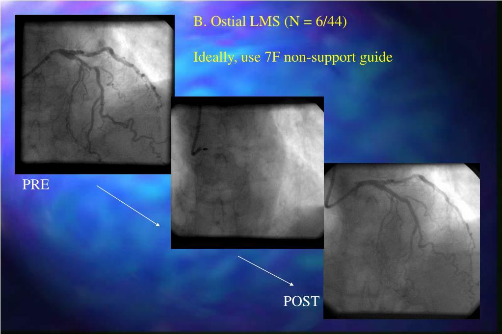 B. Ostial LMS (N = 6/44)