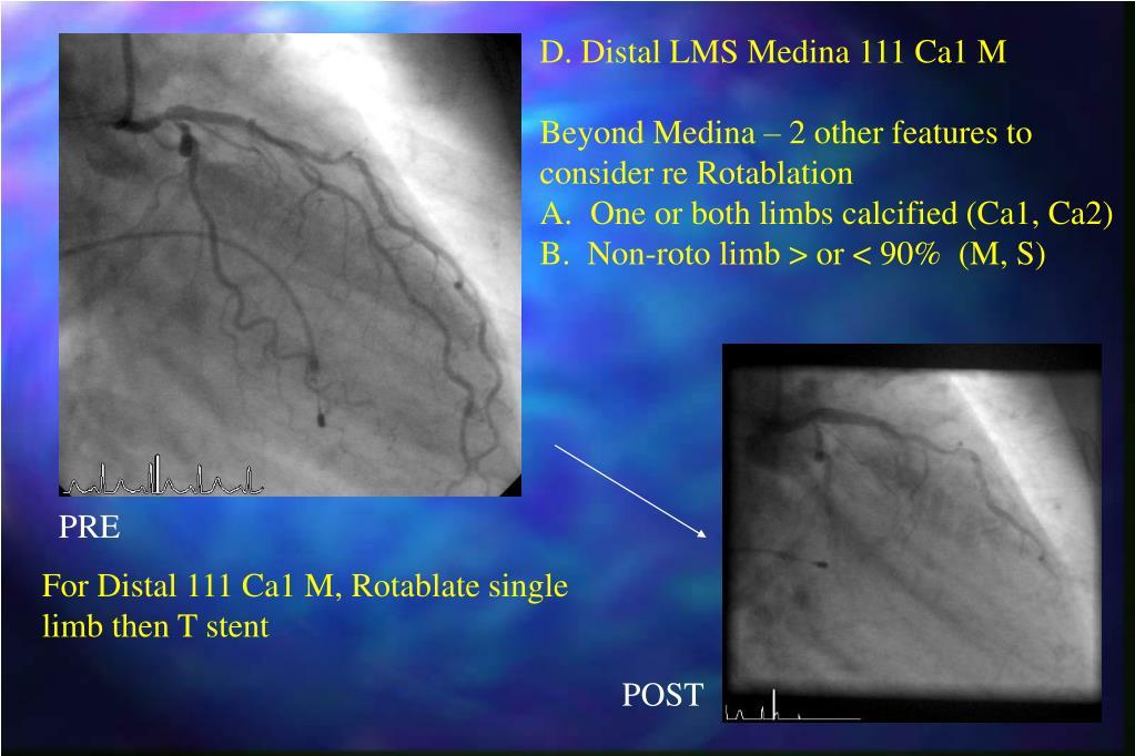 D. Distal LMS Medina 111 Ca1 M
