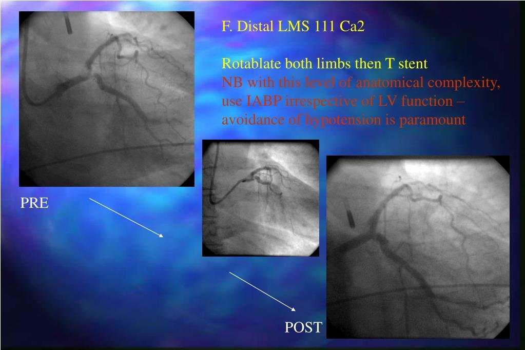 F. Distal LMS 111 Ca2