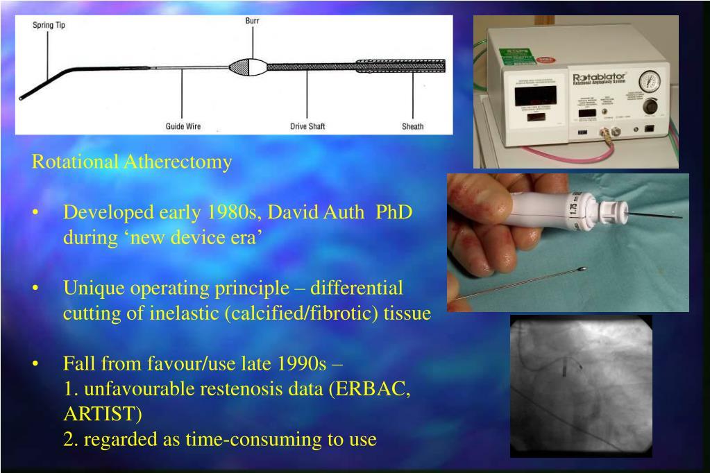 Rotational Atherectomy