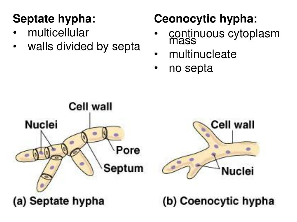 Septate hypha: