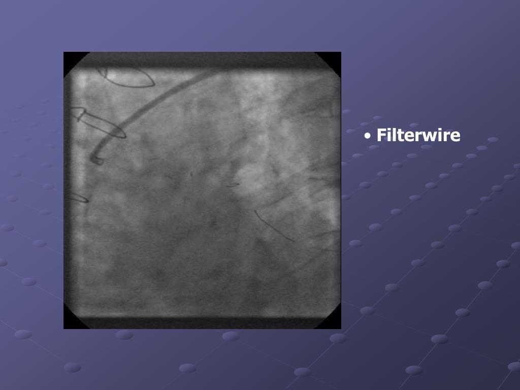 Filterwire
