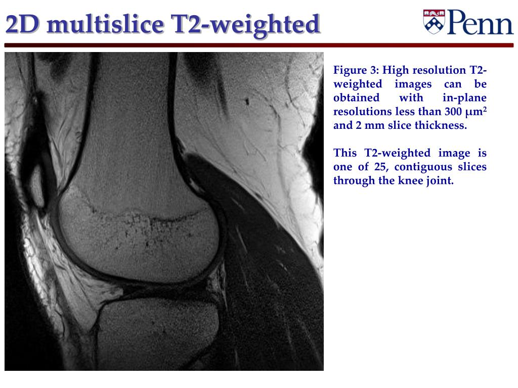 2D multislice T2-weighted