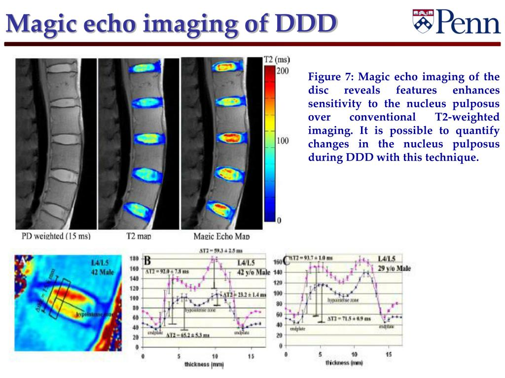 Magic echo imaging of DDD