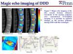 magic echo imaging of ddd