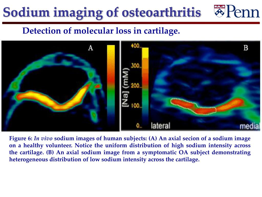Sodium imaging of osteoarthritis